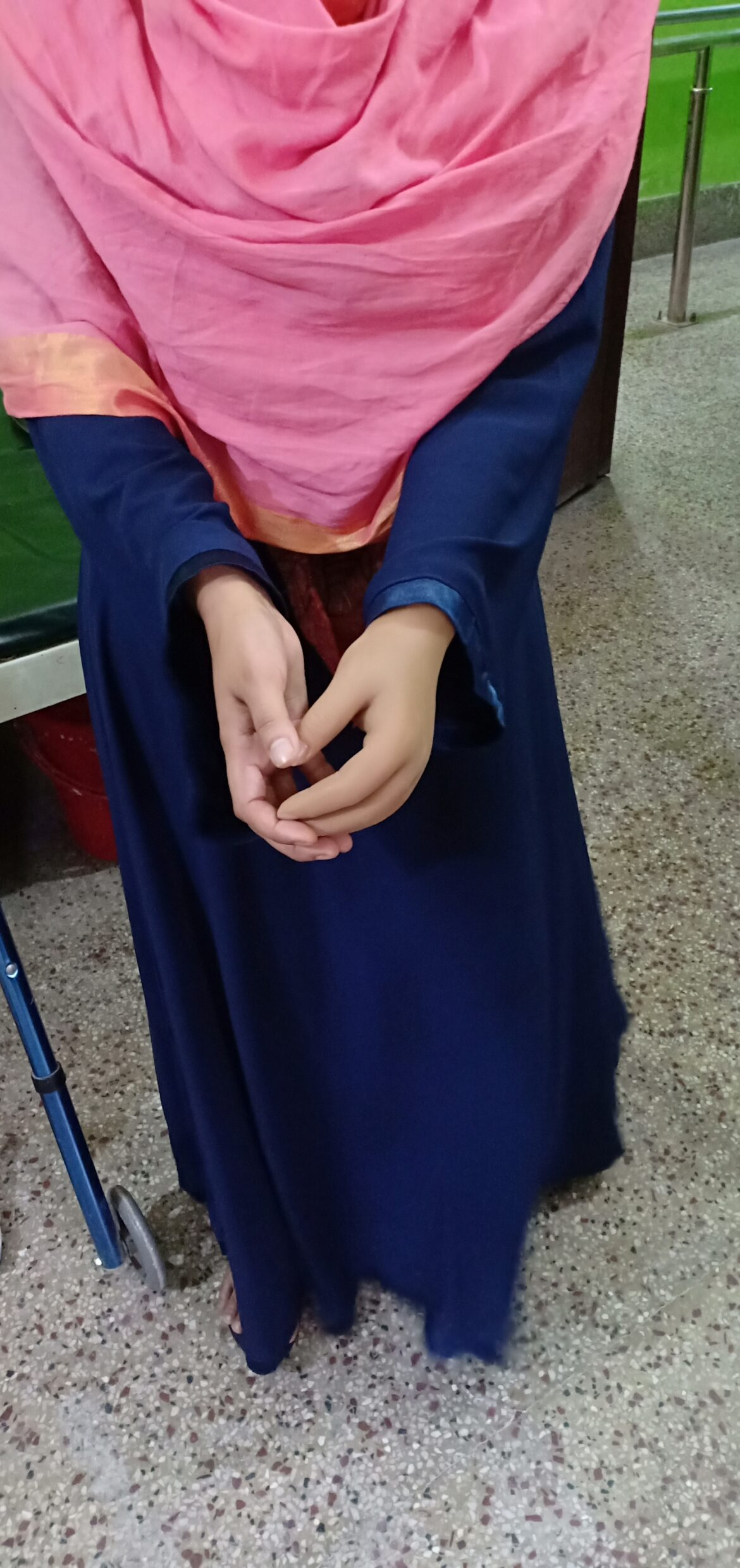 Below Elbow Prostheses with Patient (4)