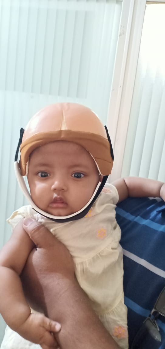 Helmet with Head Surgery baby